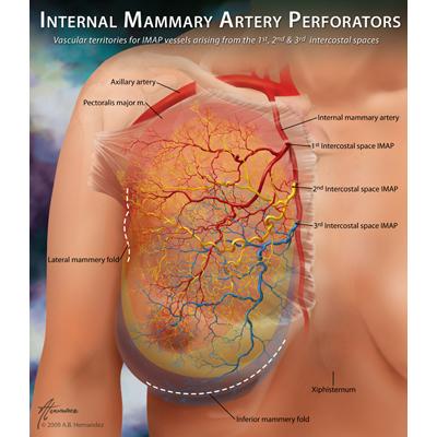 IMAP Vascular Territories
